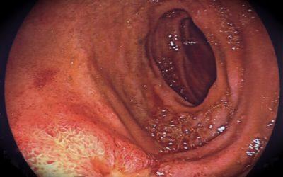 Trattamento dell'ileo biliare associato a fistola colecisto-duodenale: accorgimenti per ridurre la mortalità