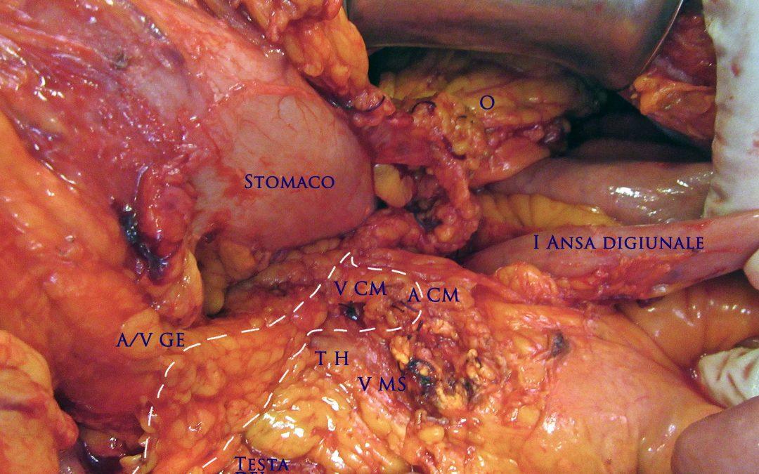 """""""Escissione mesocolica completa"""" o """"escissione mesocolica appropriata"""" nel tumore del terzo medio del colon trasverso?"""