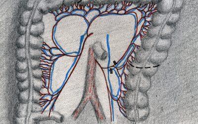 Resezione colica con conservazione della vena mesenterica inferiore per adenocarcinoma della flessura splenica: intervento palliativo o radicale?
