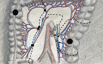 Resezione colica segmentaria sinistra con conservazione dei vasi mesenterici inferiori per adenocarcinoma tra colon discendente e sigma: indicazioni e aspetti tecnici