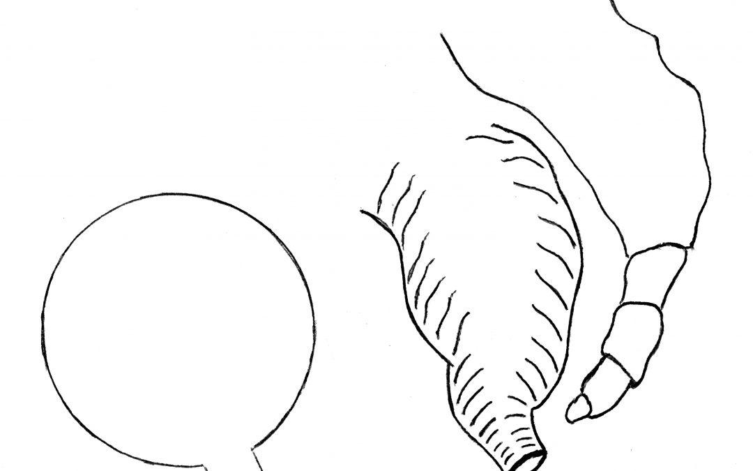 Fasciti necrotizzanti diverse dalla gangrena di Fournier complicanti la perforazione colo-anale e rettale: uno studio sull'eziopatogenesi e su altri aspetti