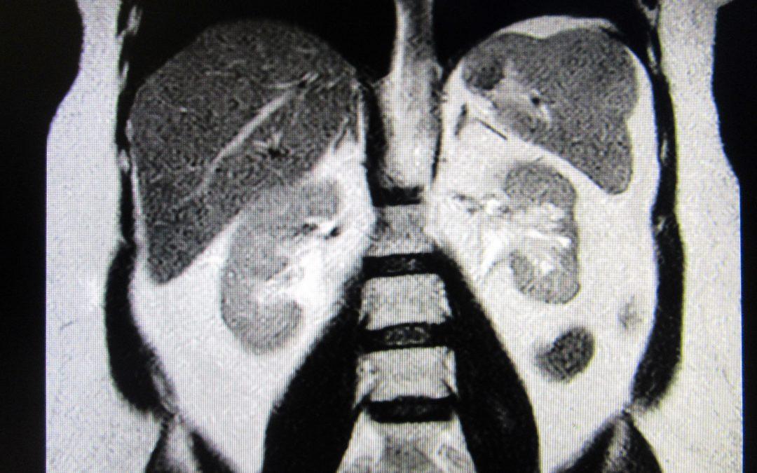 Un caso di tumore benigno della milza: osservazione o splenectomia?