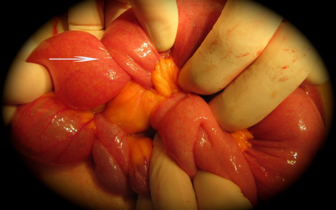 Intussuscezione intestinale nell'adulto