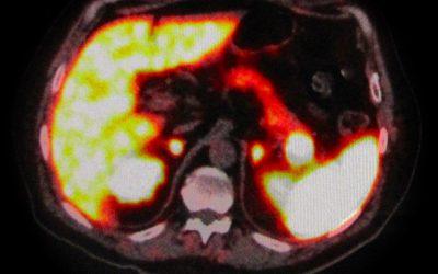 Nodulo intra-pancreatico non metastatico evidenziabile con RMN e 68Ga-DOTA-peptide PET/TC: resezione pancreatica o agobiopsia eco-endoguidata?