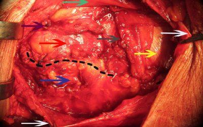 E' opportuno prevenire il laparocele con una protesi biologica negli interventi di chiusura di colostomia?