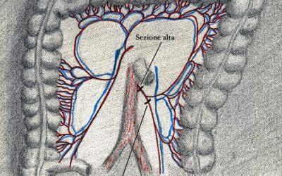 """Opportuni criteri per definire l'estensione dell'escissione mesorettale consentono di scegliere appropriatamente tra sezione """"alta"""" e sezione """"bassa"""" dell'arteria mesenterica inferiore nelle resezioni colo-rettali per adenocarcinoma del retto"""