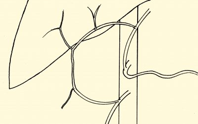 Tre questioni sulla legatura dell'asse arterioso epatico in corso di interventi non epatoresettivi