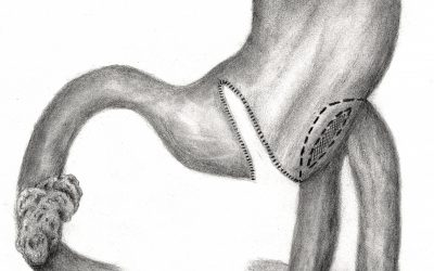 Soluzioni chirurgiche palliative nelle occlusioni da stenosi duodenale neoplastica non trattabile radicalmente